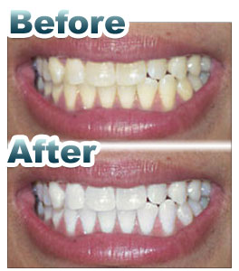 teeth whitening before and after metairie la