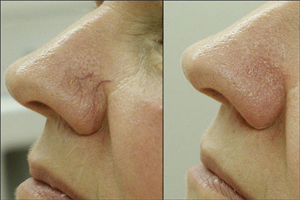 face laser vein removal Metairie, LA