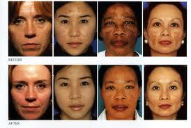 obagi treatments in metairie, la before and after